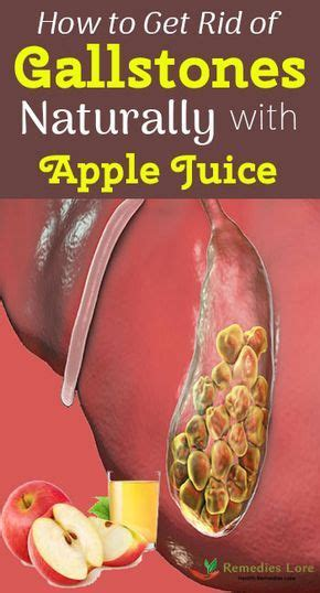 How to Get Rid of Gallstones Naturally with Apple Juice #
