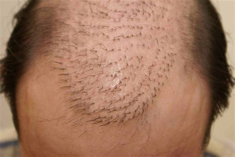 Do not have a Hair Transplant - Bald Gossip